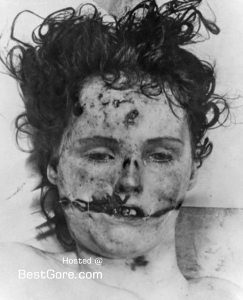 "Charles Manson Morgue | Serial Killers - ""The Black Dahlia"" Elizabeth Short autopsy photo"