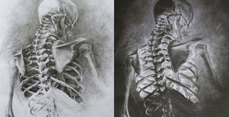 Человечество: история болезни