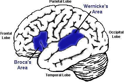 Afasia de Broca e afasia de Wernicke