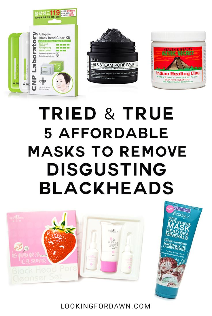 No longer troubled by blackheads. Read the roundup of TRIED & TRUE 5 Affordable Mask to Remove Disgusting Blackheads