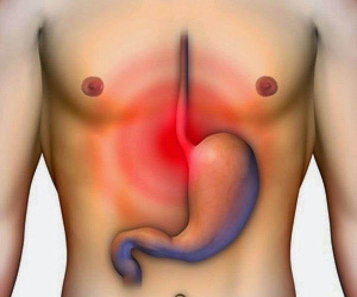 La úlcera estomacal es un desequilibrio en la mucosa que recubre el estómago, es causada por diversos factores y a veces desaparece por ...