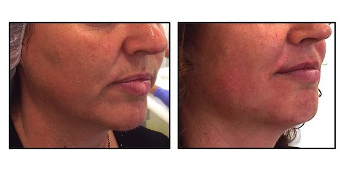 Thread lifting is a very popular treatment which can be used to lift the face and neck without the need for surgery. Excessive volume is not good but sometimes a subtle, non-surgical lift can help to redefine the face and neck. It is highly effective at lifting jowls, sagging skin and treating lines and wrinkles.