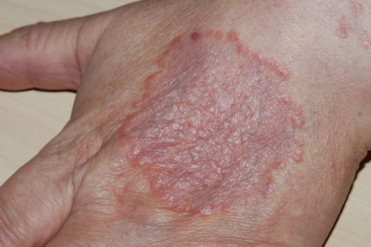 Greneton now offers just the right cure for Granuloma Annulare a chronic skin ailment causing irritating rashes on the skin and rosy collisions in the form of rings. Greneton with its herbal formula is an ultimate cure to this infection.