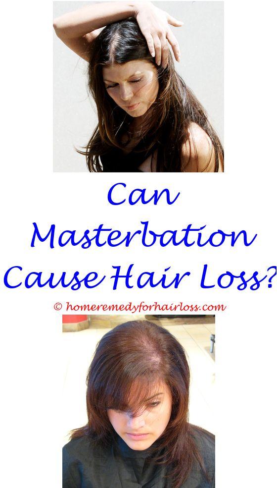 cat hair loss eyelid - best shampoo for oily scalp and hair loss singapore.ats hair loss lazer helmet men's hair loss cream for hairline indian hair mask for hair loss 2290144250