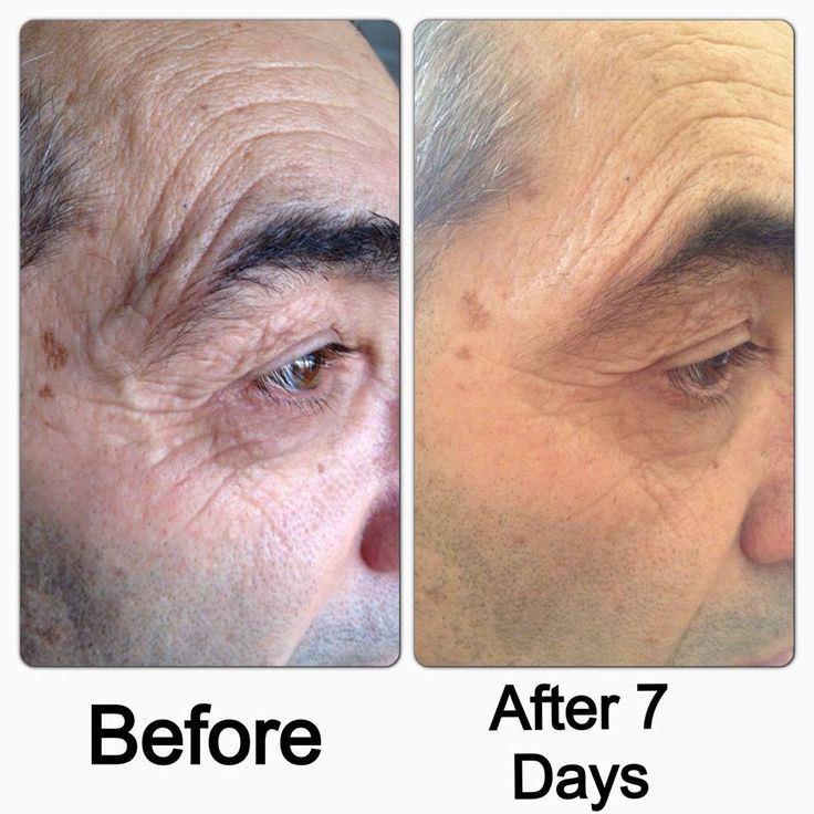 Before/After shots of Luminesce. This product is Jeunesse patented Anti Ageing Stem Cell Serum.