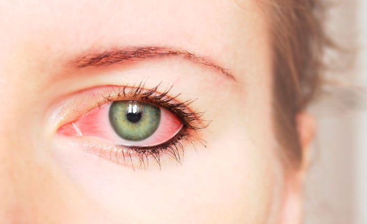 """A conjuntivite é uma inflamação da conjuntiva, uma membrana que recobre o globo ocular. O artigo, """"remédio caseiro para conjuntivite"""" debruça-se sobre algun"""