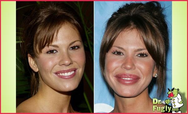 Emily sears plastic surgery - houmulch.com