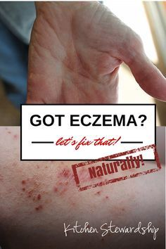 Natural Cure for Eczema for Good