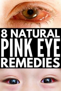 Home Remedies for Pink Eye   Want to know how to get rid of conjunctivitis FAST before you need antibiotic drops? Perfect for kids and for adults, we're sharing 8 DIY natural remedies you can use at home TODAY for quick, overnight relief from itchy, watery, irritated eyes. #pinkeye #conjunctivitis #pinkeyeremedy #homeremedies #parentingtips #parenting101