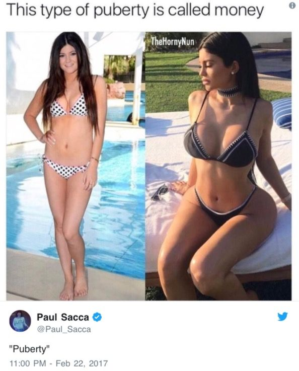 Kylie Jenner's Before And After Fame Bikini Pics Have Got People In Hysterics