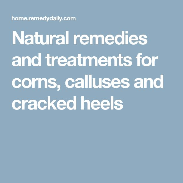 Natural remedies and treatments for corns, calluses and cracked heels