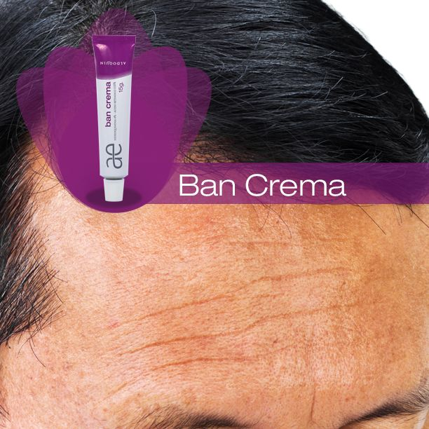 Ban Crema esta indicado en el tratamiento de la hiperpigmentación posinflamatoria, manchas producidas por el sol, cloasma del embarazo y manchas aparecidas en la piel. www.aldoquin.com