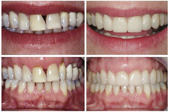 Cosmetic dental surgery Melbourne