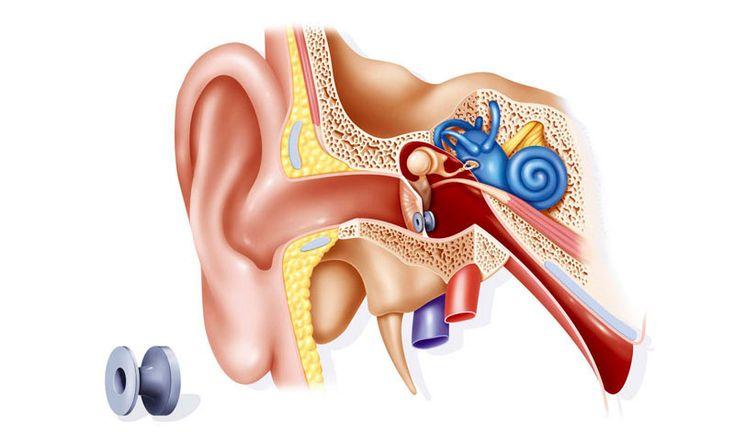 Ear Grommets