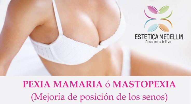 PEXIA MAMARIA o MASTOPEXIA . .  .Consiste en la elevación de los senos