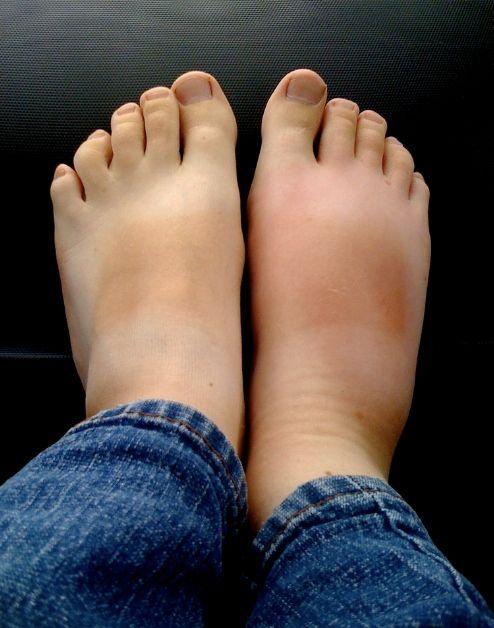Fülle eine Schüssel mit Tonic Water. Wenn du jetzt deine Füße hineinlegst, passiert etwas Tolles.