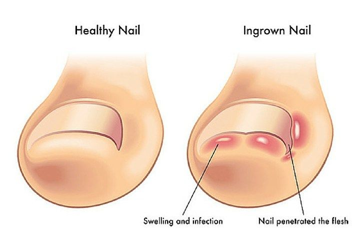 An ingrown toenail, or also known as onychocryptosis, is a very common problem from which suffer many people. The corner orside edge of the toenail grows into the soft flesh of the nearby skin and…