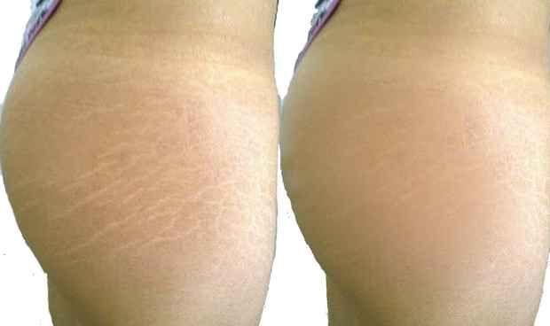 Las estrías suelen aparecer en el abdomen, muslos, pechos, glúteos, causadas generalmente por las subas y bajas de peso, estrés, embarazos, entre otros. Es hora de que la elimines, así que toma nota de los ingredientes naturales y diles adiós de unamanera natural y económica. Ingredientes …