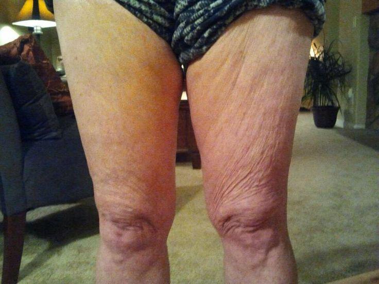 Dimostrazione di un dopoi trattamento con GALVANIC BODY SPA