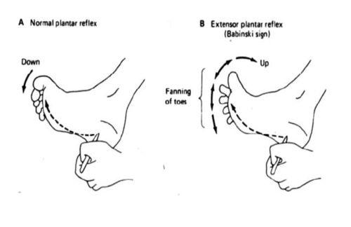 Babinski Sign (newborn). A positive sign is a fanning of