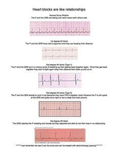 EKG RHYTHM. definitely going to make it easier to remember!