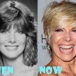 Debby Boone Plastic Surgery