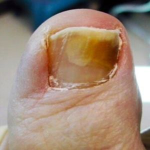 Thinning down thick toe nails....wicked nasty looking :-/