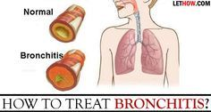 How to Treat Bronchitis? How to treat bronchitis? Natural home remedies for bronchitis treatment? Treat chronic bronchitis. Prevent Bronchitis. Ways to get rid of acute Bronchitis.