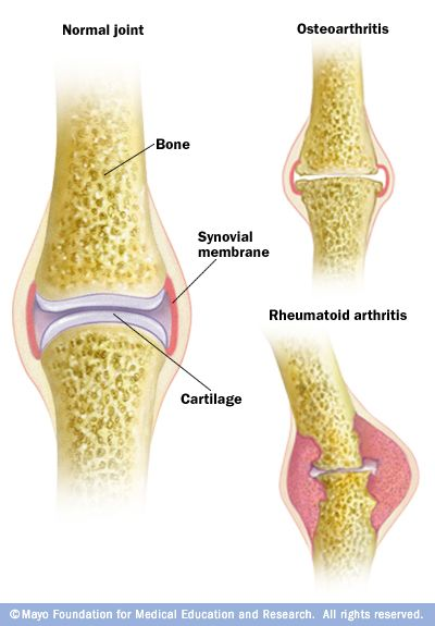 Illustration showing difference between osteoarthritis and rheumatoid arthritis.Osteoarthritis, the most common form of arthritis, involves the wearing away of the cartilage that caps the bones in your joints. With rheumatoid arthritis, the synovial membrane that protects and lubricates joints becomes inflamed, causing pain and swelling. Joint erosion may follow.