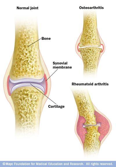 Ilustración que muestra la diferencia entre la osteoartritis y arthritis.Osteoarthritis reumatoide, la forma más común de artritis, implica el desgaste del cartílago que limita los huesos en las articulaciones. Con la artritis reumatoide, la membrana sinovial que protege y lubrica las articulaciones se inflama, causando dolor e hinchazón.