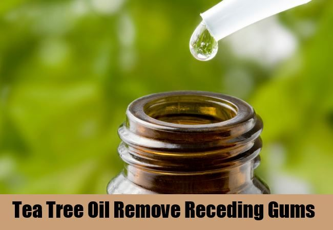 13 Home Remedies For Receding Gums - Natural Treatments & Cure For Receding Gums | Find Home Remedy & Supplements