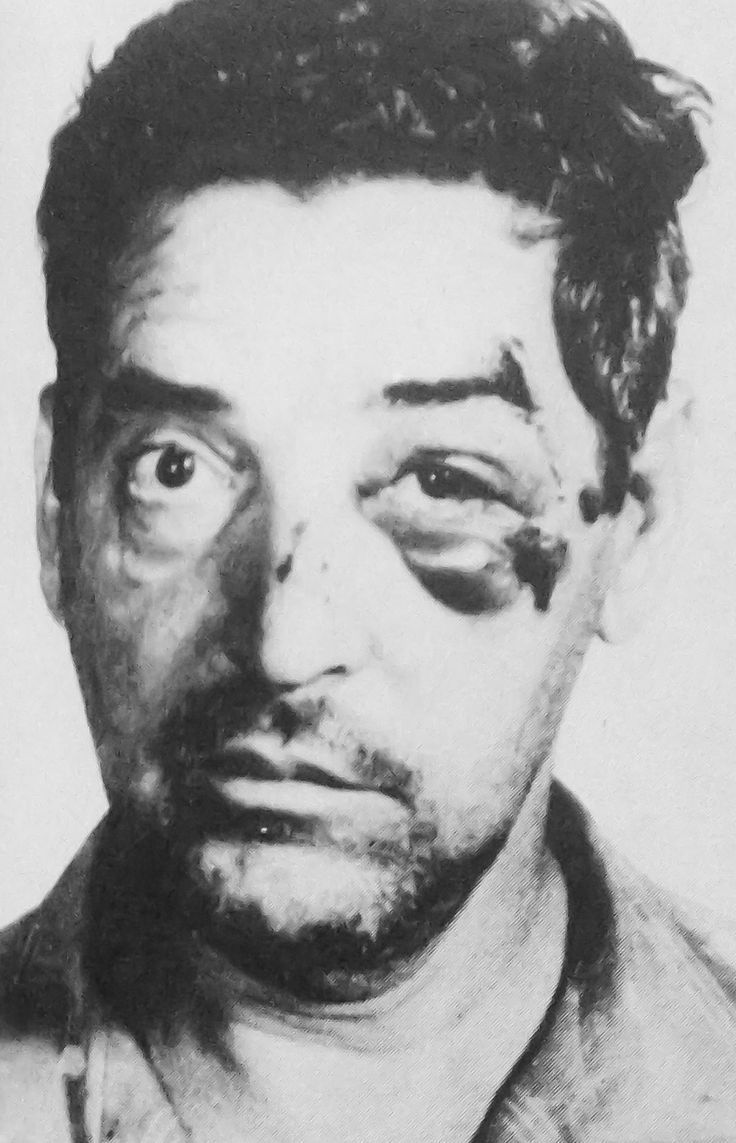 Profaci/Colombo soldier John Scimone aka Johnny Green (1912-2002). He was Profaci's bodyguard, he was kidnapped and roughed up by the Gallo gang as seen on the picture. Scimone was suspected of being the one who strangled Albert Gallo at the Sahara Lounge.