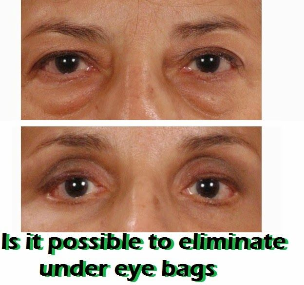 Eye Bag Removal: What's Possible and What Isn't ~ MediMiss