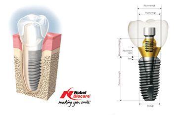 Implant Dentar Laser - Advanced Gentle Dentist - iPLus by BIOLASE Fara Durere! Fara Sangerare! Vindecare Rapida!  Oferta Implant Laser: 500 Euro