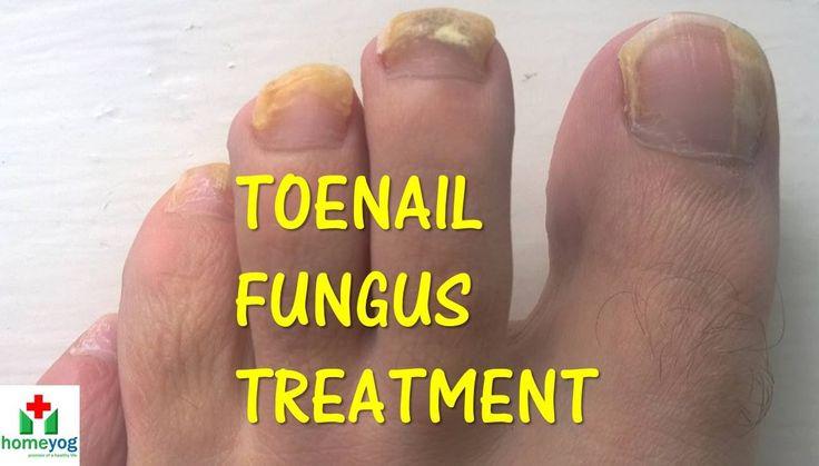 Toenail Fungus Treatment : Cure Long-Standing Fungus Under Toenails