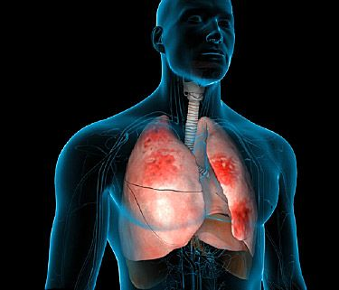How do your lungs protect against infection, and what should you do if you have pneumonia?