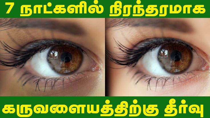 How to remove dark circles under eyes - Tamil Beauty Tips