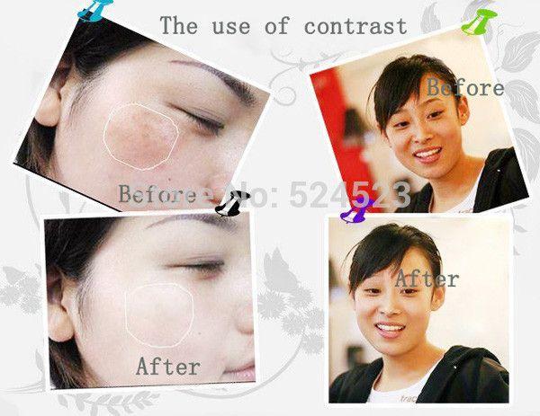 10 шт. изгоняющий сущность удалить пятна пигмент и веснушки 7 дн. - крем для лица