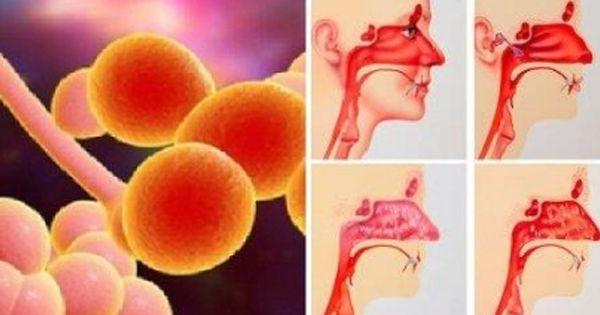La sinusite e il naso costantemente tappato oggi sono problemi che riguardano la maggior parte della popolazione. La causa è dovuta quasi esclusivamente alla dieta. Vediamo quindi come risolverli c…