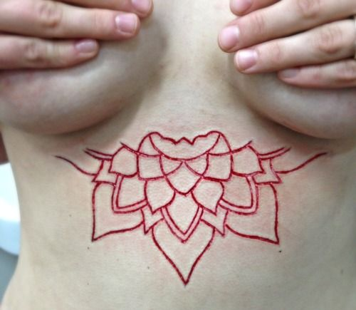 Scarification and its impact on the