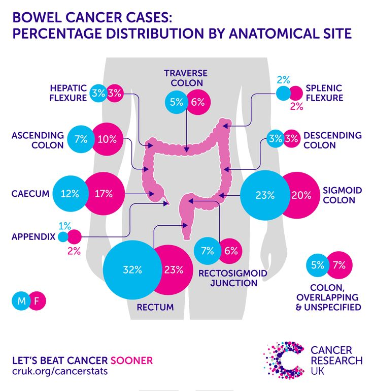 Donate NOW and help support bowel cancer research! | Stuff I like ...