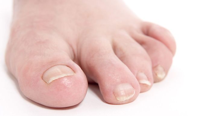 Tratamentos para unhas encravadas com sulfato de magnésio. Uma unha encravada geralmente ocorre no dedão do pé. O problema começa quando a unha cresce para baixo ao invés da direção correta, penetrando na pele. Esse problema ocorre mais comumente no leito ungueal e causa inflamação, dor e inchaço. O problema piora quando a unha é cortada e a área se infecciona. Isso pode causar mais dor, inchaço e ...