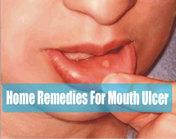 how to get rid of mouth ulcers naturally