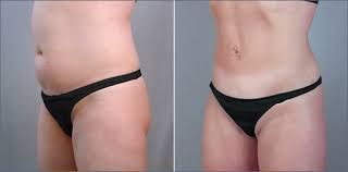 how to lose upper belly fat after tummy tuck – #Belly #fat #Lose #tuck #tummy #u…