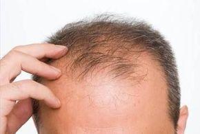 Şampuanınıza ekleyeceğiniz 2 madde ile saç dökülmesini durdurabilir, sağ…