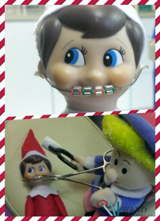 Day 1 - Tinsel arrives at our office with a new set of braces. Who put them on, you ask? Well who else - Hermie the Dentist! #Tinsel #WardOrthoElf #braces