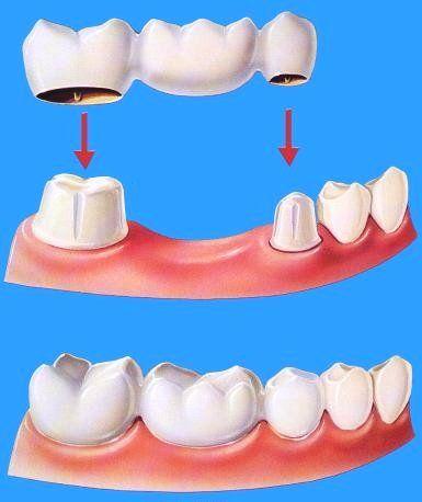 Puente Fijo.  K & F Dental-Spa Recuerda...... que la limpieza dental es dos veces al año. Agenda tu cita hoy (664)685.00.58