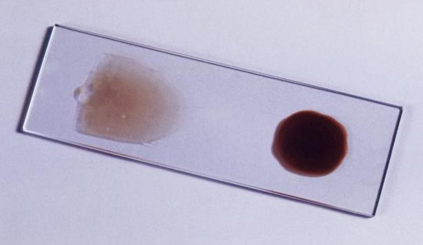 The blood film is the gold standard for malaria diagnosis.