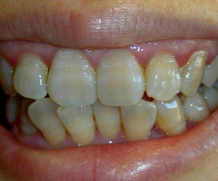 A potential side effect of tetracycline antibiotics are yellow stained teeth.