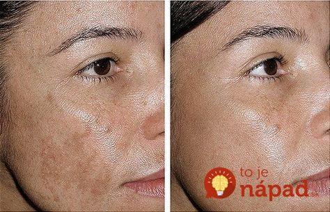 Máte na tvári, rukách alebo dekolte pigmentové škvrny. Takto sa ich môžete zbaviť!